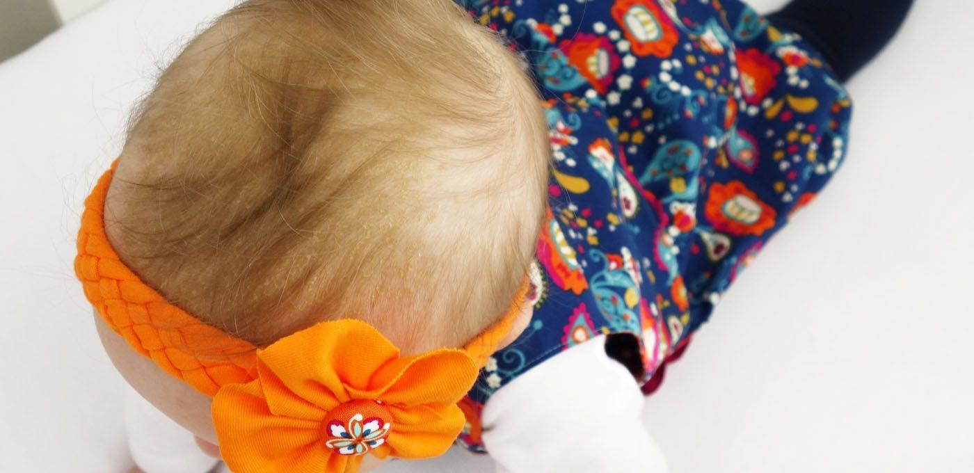 Passt zu jedem Babykleid: ein selbstgemachtes Blüten-Haarband